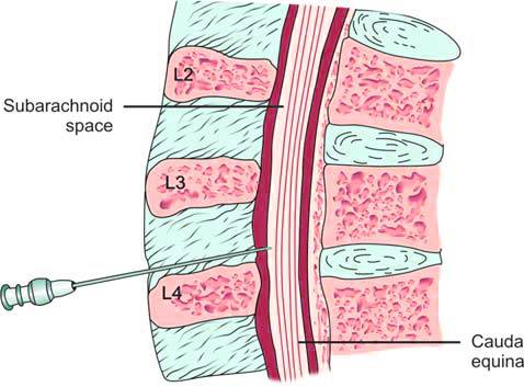 Site of lumbar puncture. Structures through which needle passes are skin/superficial fascia, ligaments, epidural space, dura mater, subdural space, arachnoid mater and subarachnoid space
