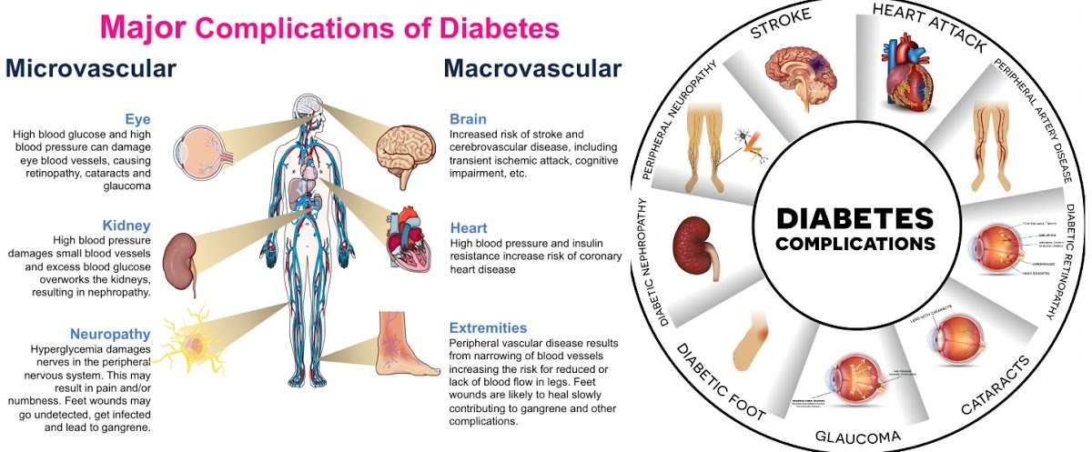 Major Complications of Diabetes Mellitus