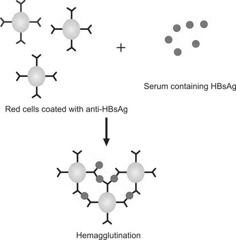 Figure 1197.2 Principle of reverse passive hemagglutination assay for HBsAg