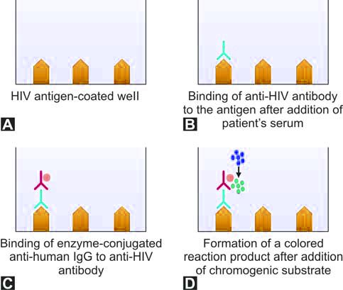 Figure 1197.5 Principle of ELISA test for anti HIV antibodies