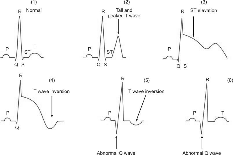 Figure 1201.3 Sequential electrocardiographic changes after acute myocardial infarction