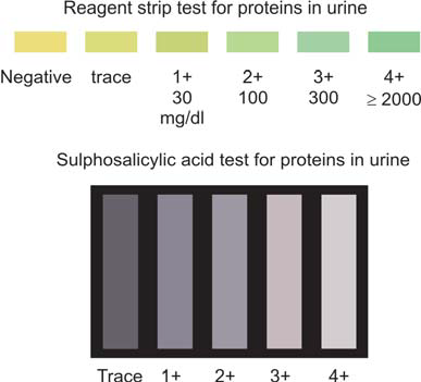 Figure 821.3 Grading of proteinuria with reagent strip test