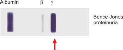 Figure 821.4 Urine protein electrophoresis showing heavy Bence Jones proteinuria