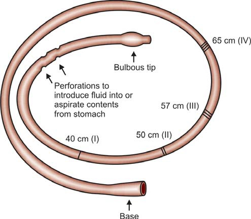 Figure 855.1 Oral or nasogastric Ryles tube