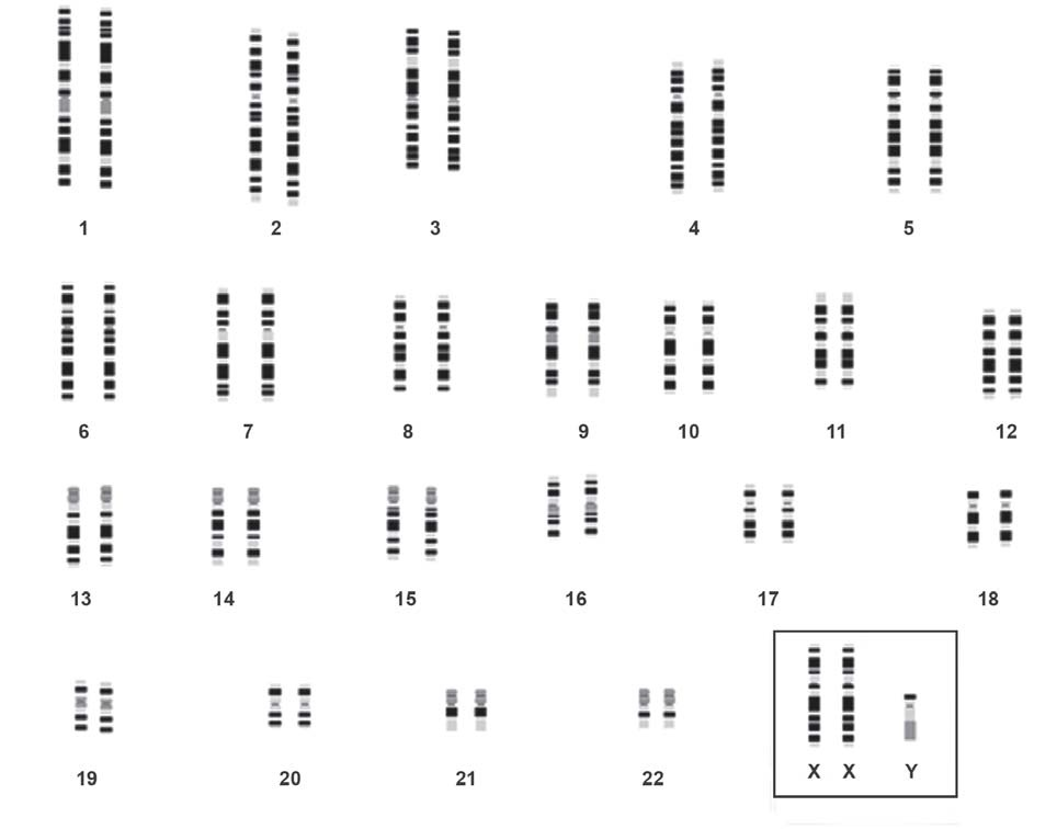 Figure 861.5 Karyotype in Klinefelter's Syndrome