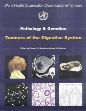 WHO Classification of Tumours: Pathology and Genetics of Tumours of the Digestive System, 2000