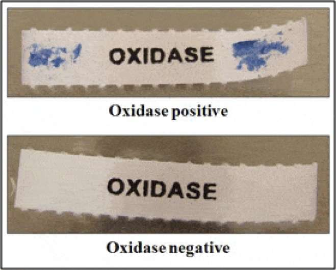 Oxidase Test Results