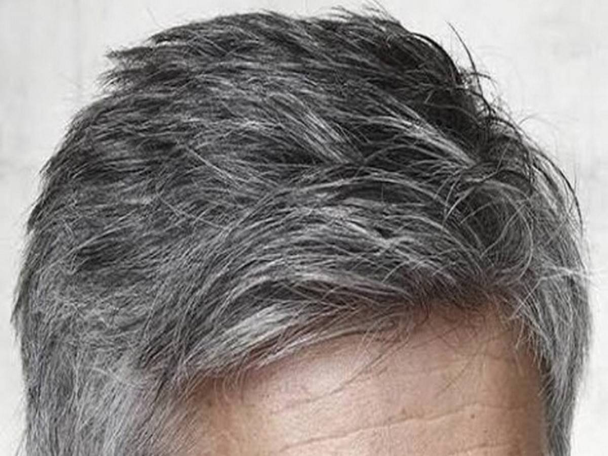 What Causes White Hair and How to Prevent it?