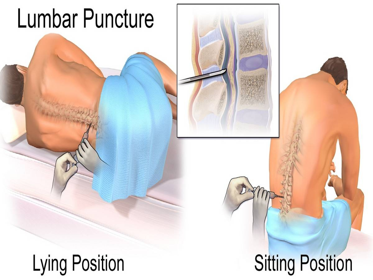 Lumbar Puncture: (A) Lying position (B) Sitting position