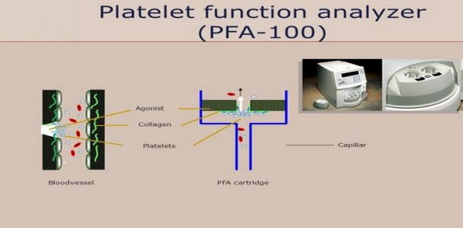 Platelet Function Analyzer (PFA-100)®