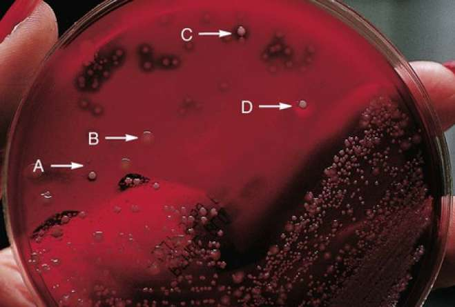 Different colony morphologies exhibited on sheep blood agar by various bacteria, including alpha-hemolytic streptococci (arrow A), gram-negative bacilli (arrow B), beta-hemolytic streptococci (arrow C), and Staphylococcus aureus (arrow D).