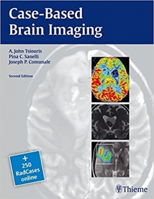 Case-Based Brain Imaging (RadCases) by A. John Tsiouris (2013-02-19)