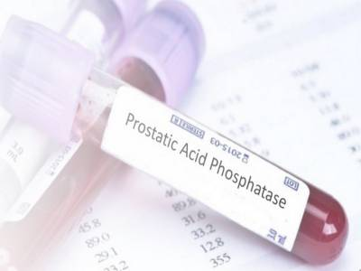 Acid Phosphatase (AP): Total and Prostatic Acid Phosphatase