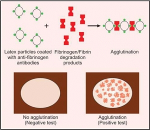 Figure 814.1 Principle of latex agglutination test for fibrinogen/fibrin degradation products