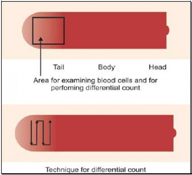 EXAMINATION OF BLOOD SMEAR