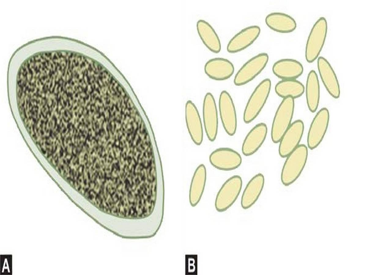 (A) Enterobius eggs, (B) Enterobius eggs collected by transparent tape method