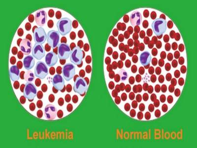 Diagnosis of Acute Myelocytic Leukemia (AML) and Acute Lymphocytic Leukemia (ALL)