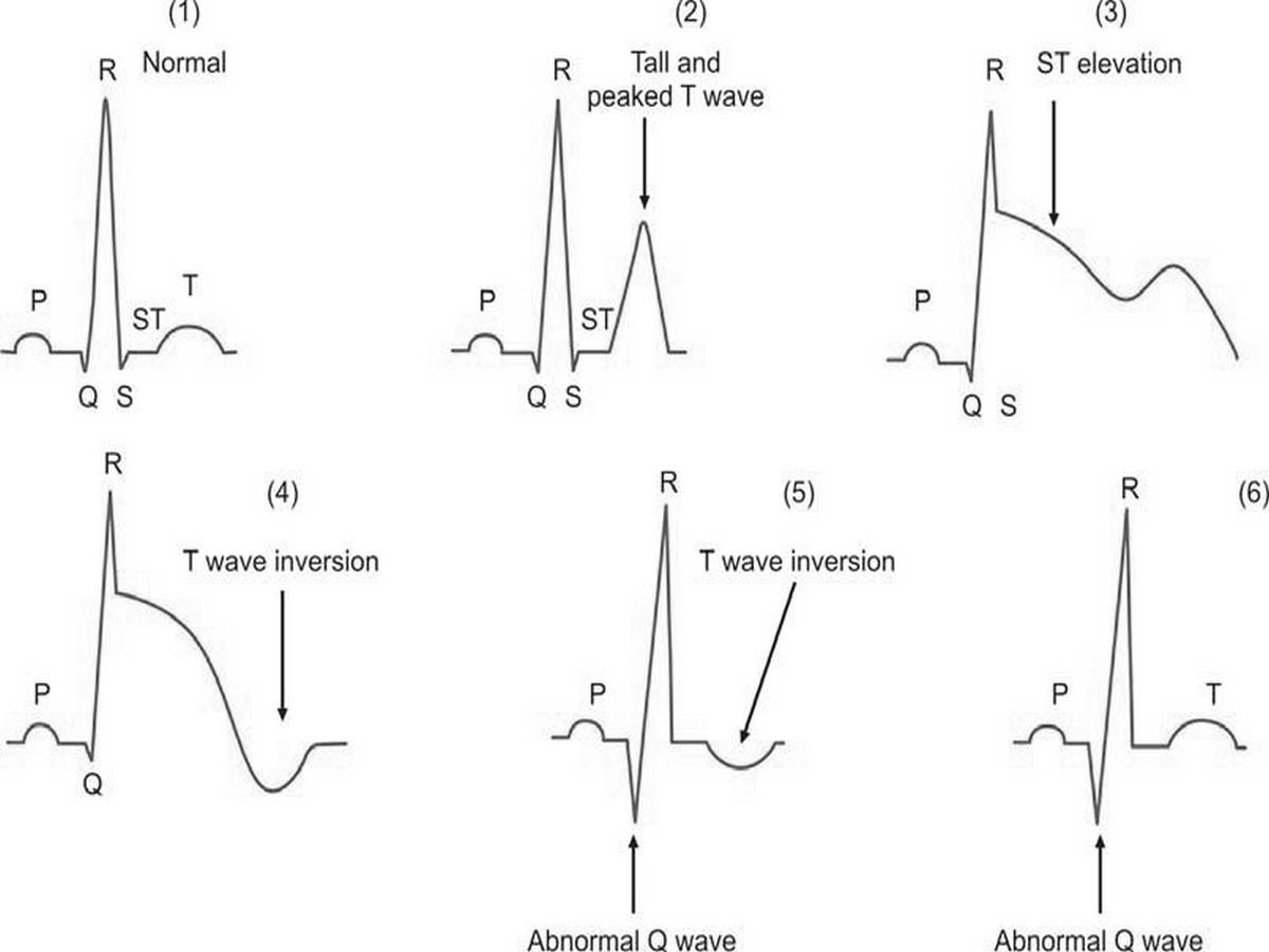 (1) Normal electrocardiogram pattern; (2) to (6): Sequential electrocardiographic changes after acute myocardial infarction. Initially, T wave becomes tall, peaked, and pointed (first few minutes) and there is ST segment elevation. T wave inversion occurs after a few hours and there is the development of an abnormal Q wave. After some duration, ST segment returns to normal and T wave becomes normal. Q wave changes, however, persist.