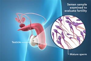 PHYSICAL EXAMINATION OF SEMEN FOR INVESTIGATION OF INFERTILITY